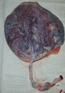 Placenta before encapsulation