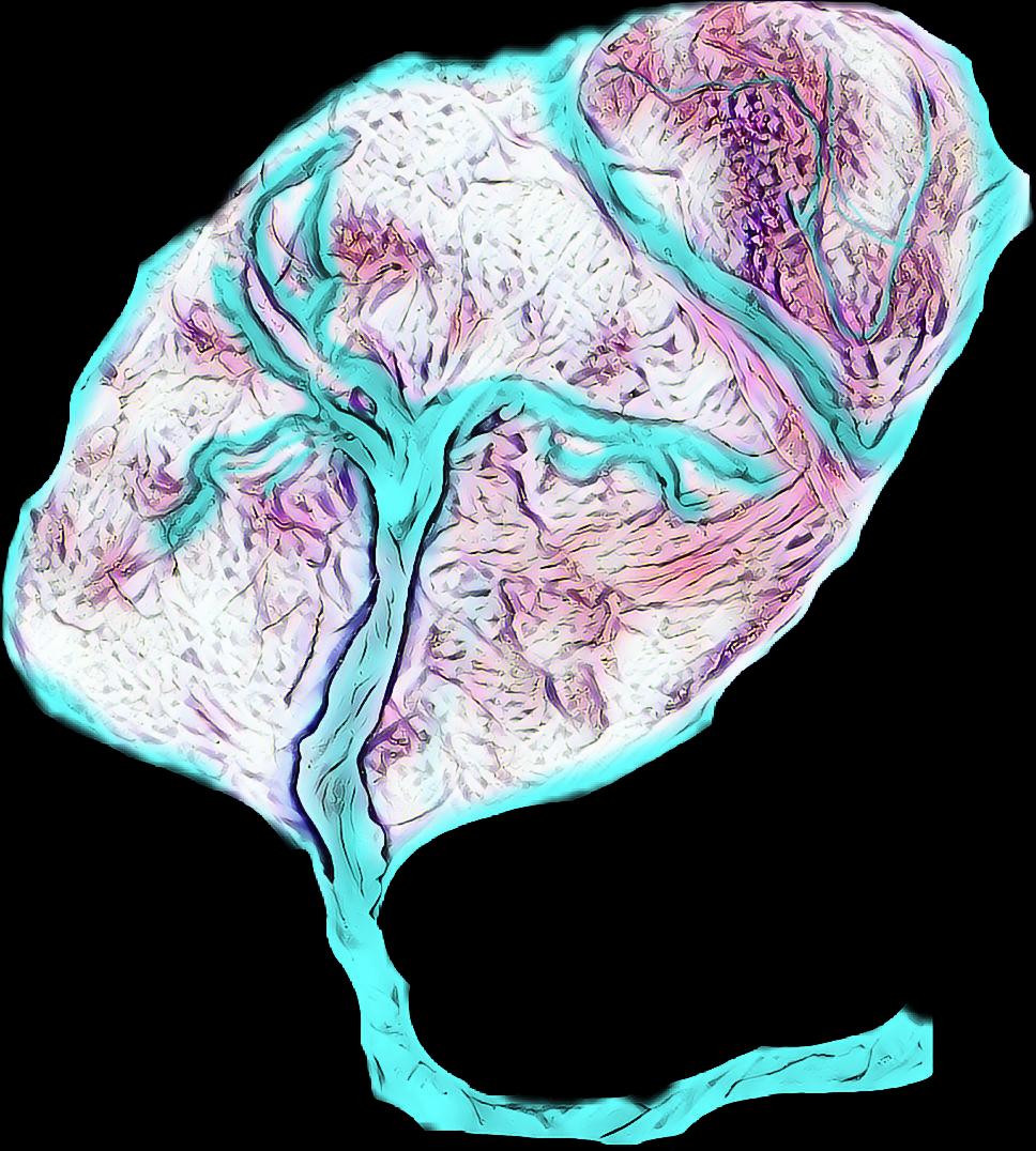 Succenturiate placenta art